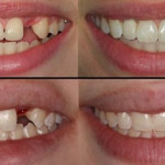 cirurgia implante dentário