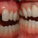 implante dental quanto custa