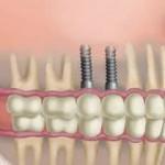 implante dentário total preço