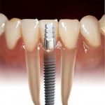 cirurgia de implante de dente