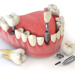 implante dental quanto custa