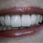 implante dentário preço de cada dente